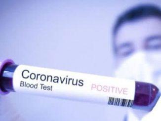 коронавирус Николаева, коронавирус, Украина, COVID-19, здоровье, новости, пандемия, Николаев, Киев