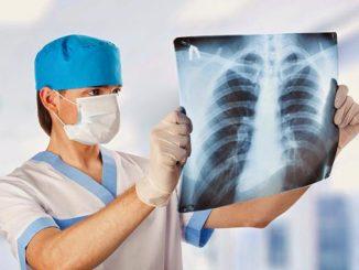 Рентген легких, легкие, туберкулез, коронавирус