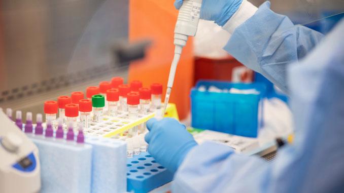 МОЗ ПЦР, тесті, карантин, коронавирус, пандемия, новости, минздрав, Украина, институт молекулярой биологии и генетики, медицина, ученіе, медики, врачи, здоровье, тесты, ПЦР
